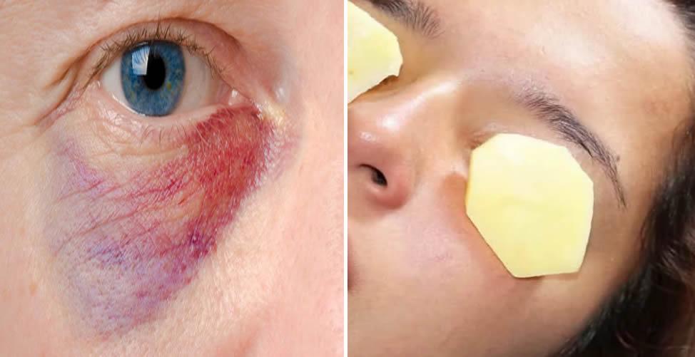 Como Aliviar o Roxo do Olho