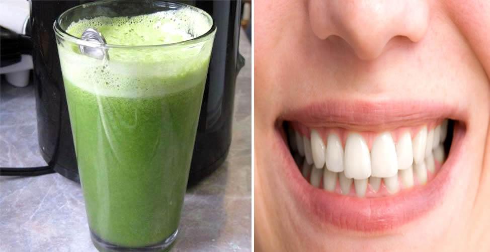 Remédio Caseiro para Perda Óssea Nos Dentes