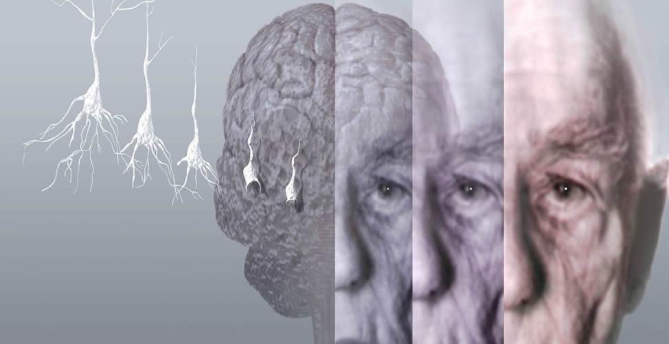 Remédio Caseiro Para o Alzheimer-Sintomas