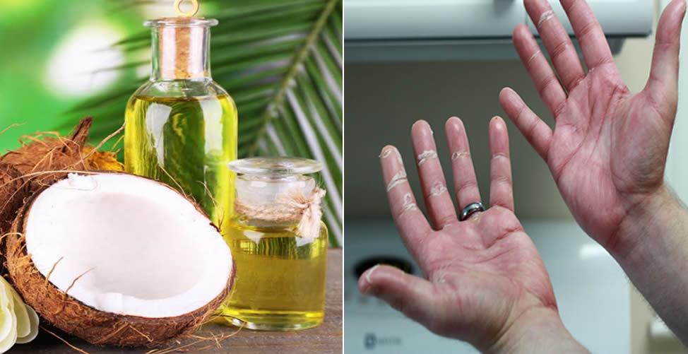 Como Tratar Mãos Secas